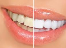 Cosmetic dentist in Adelaide